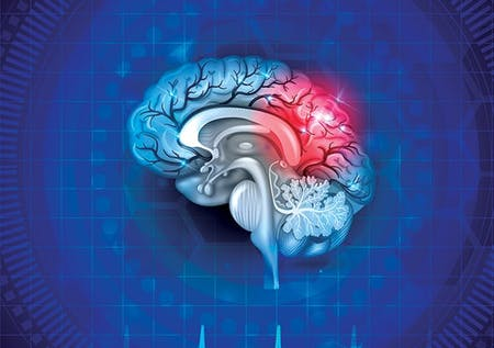 Medical Coding for Stroke and Concussion Care image