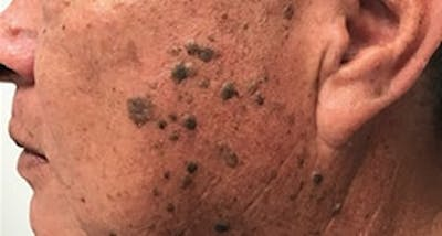 New Options for the Treatment of Extensive Seborrheic Keratosis image