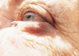 Osteoporosis and the Eye image