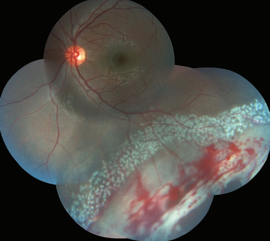 A Challenging Case of Large Post-Traumatic Retinal Tears image